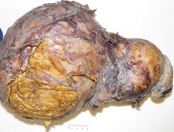 Abdominal schwannoma, removed
